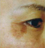 laser pigmentation before (180)(copy)